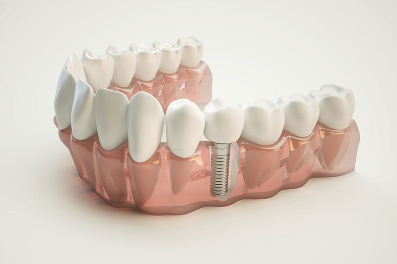 tooth implant in Ocoee